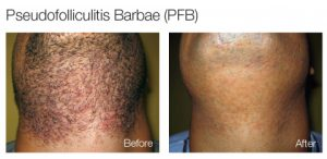 painless-laser-hair-removal-before-and-after-photos