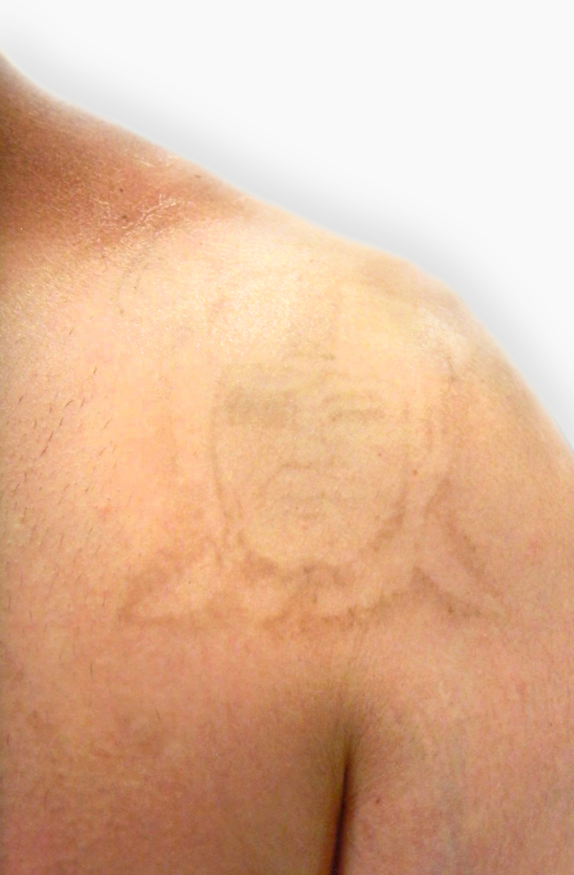 Atlantic Laser Tattoo Removal | Tattoo Cover-Ups and Tattoo Removal